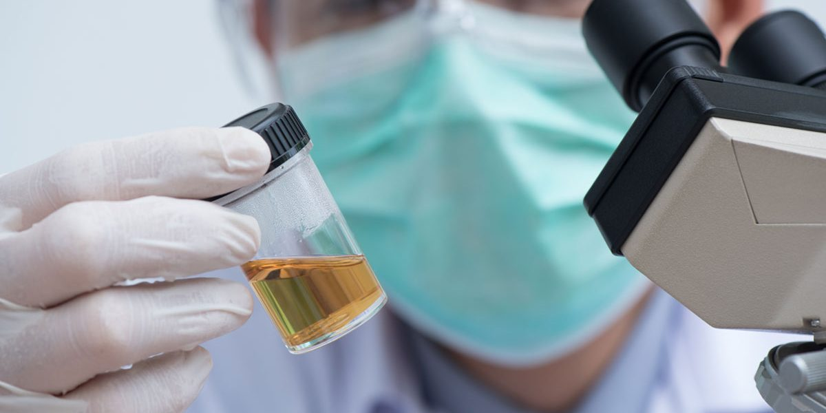 Where to Find High-Quality Synthetic Urine Online