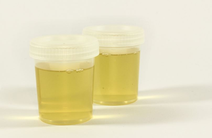 synthetic urine in storage containers